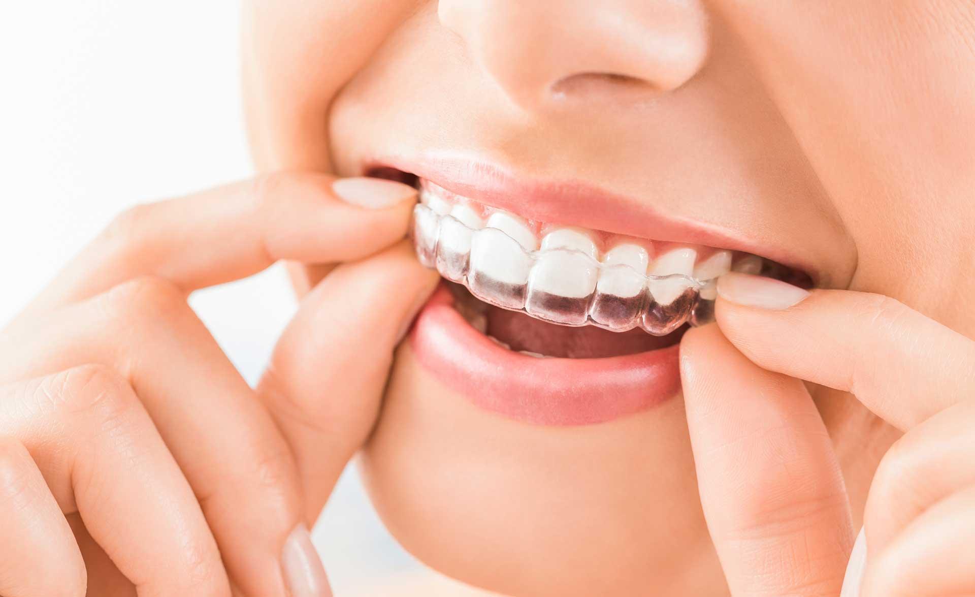 Ortodonzia-Invisibile