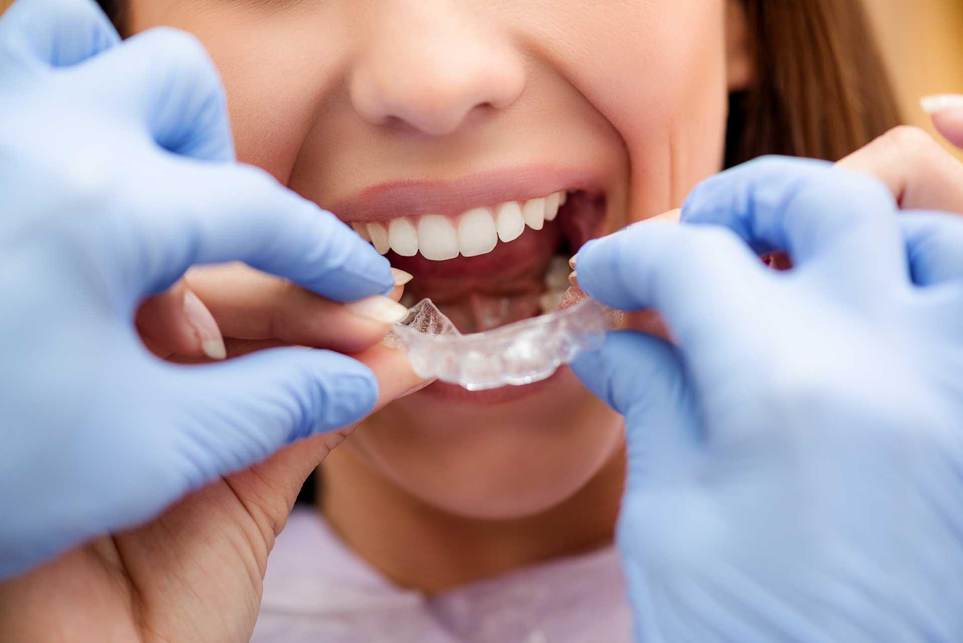 Ortodonzia-Invisibile3